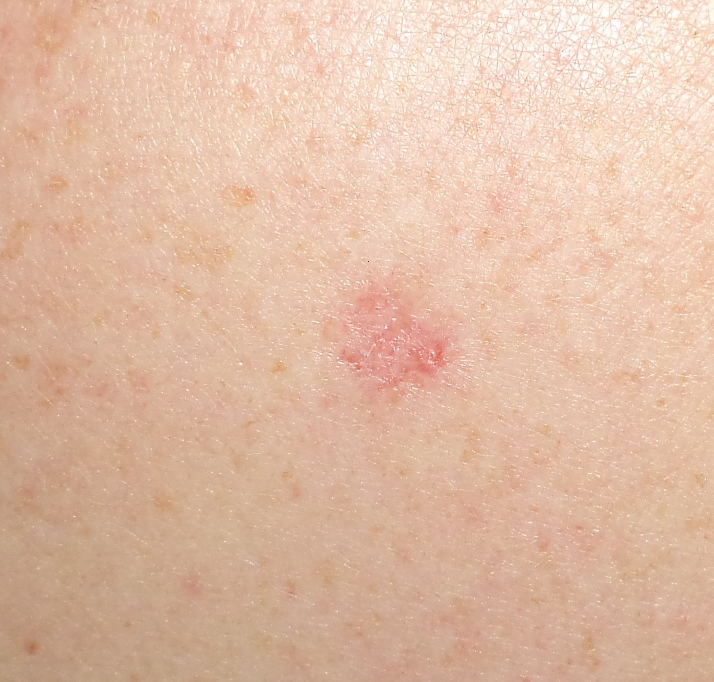 Picture of Basal Cell Carcinoma - WebMD