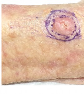 Skin cancer arm