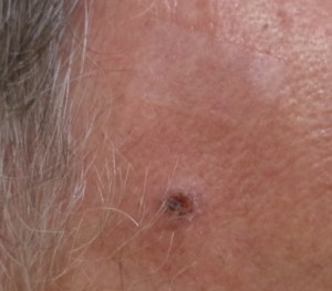 SKin cancer forehead